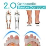 Orthopedic Bunion Corrector 2.0 (1 PAIR)