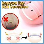 Ingrown Toe Nail Correction Sticker