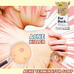 Acne Terminator Soap