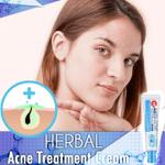 Herbal Acne Treatment Cream