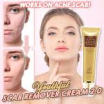 Youthful Scar Remover Cream 2.0 - LimeTrifle