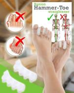 Bunions Hammer Toe Straightener (1Pair) - LimeTrifle