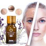 Spotless Skin Brightening Oil 🔥 Buy 2 Get FREE SHIPPING 🔥