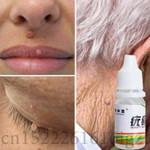 Skin Tag Mole Wart Remover