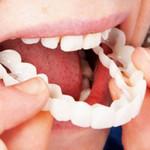Magic Teeth Snap On Veneers