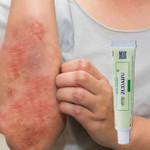 Advanced Psoriasis & Eczema Cream